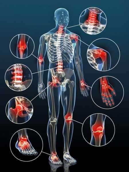 Движение при артрите